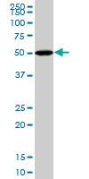 BMP-5 Antibody   1G6 gallery image 1