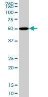BMP-5 Antibody | 1G6 gallery image 1