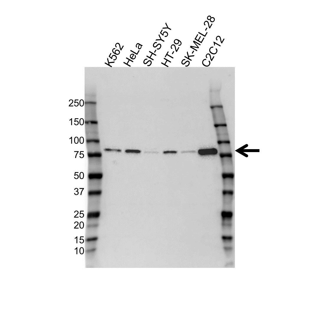Braf Antibody (PrecisionAb<sup>TM</sup> Antibody) | OTI4B2 gallery image 1