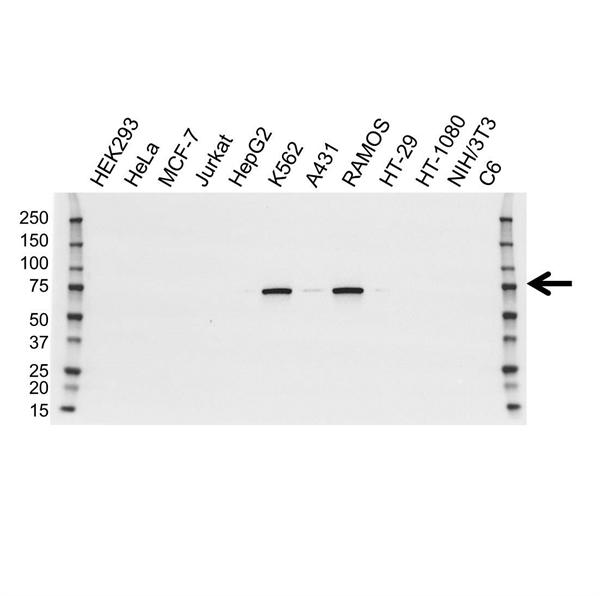 BTK Antibody (PrecisionAb<sup>TM</sup> Antibody) | OTI12D4 gallery image 1