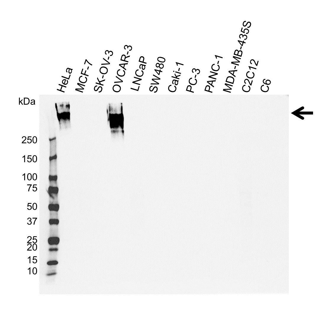 CA125 Antibody (PrecisionAb<sup>TM</sup> Antibody) gallery image 1