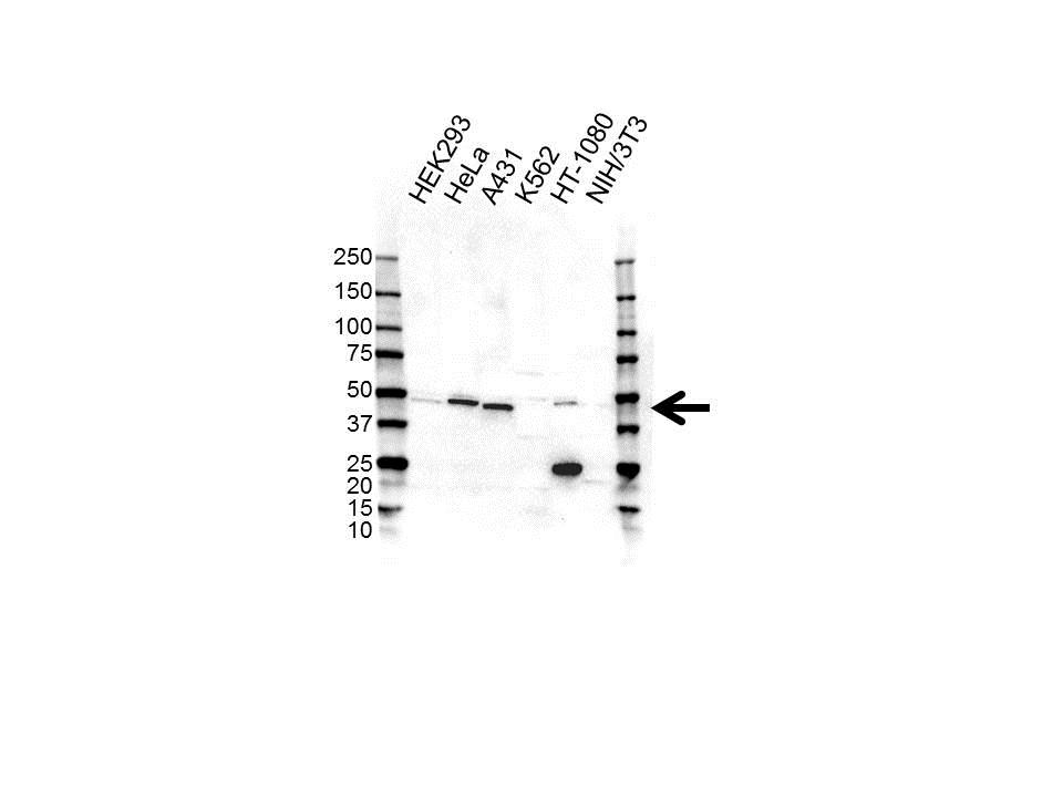 CAD Antibody (PrecisionAb<sup>TM</sup> Antibody) gallery image 1