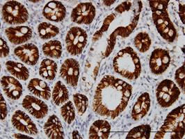 Cadherin 17 Antibody | 1H3 gallery image 1