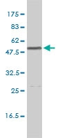 Calreticulin Antibody | 1G11-1A9 gallery image 1