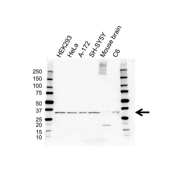 Calretinin Antibody (PrecisionAb<sup>TM</sup> Antibody) gallery image 1