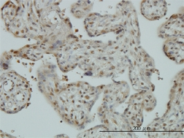 CAND1 Antibody | 5D7 gallery image 2