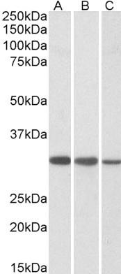 CAPZB Antibody gallery image 1