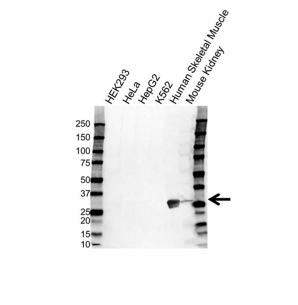 Carbonic Anhydrase III Antibody (PrecisionAb<sup>TM</sup> Antibody) gallery image 1