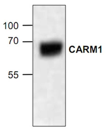 CARM1 Antibody gallery image 2