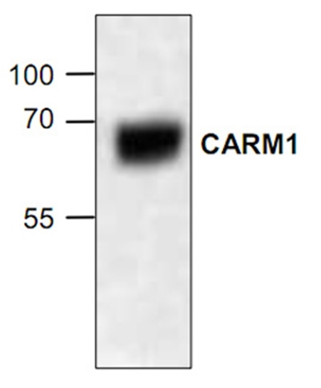 CARM1 Antibody gallery image 1