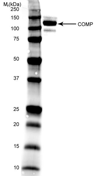 Cartilage Oligomeric Matrix Protein Antibody | MA37C94 (HC484D1) gallery image 1