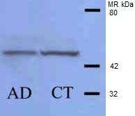 Casein Kinase 1 Delta Antibody gallery image 2
