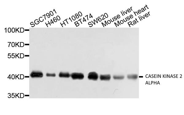 Casein Kinase 2 Alpha Antibody gallery image 1