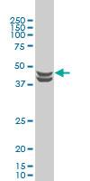 Casein Kinase 2 Antibody   3D9 gallery image 1