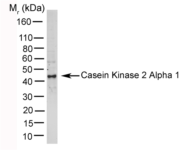 Casein Kinase 2 Antibody | 5928 gallery image 1