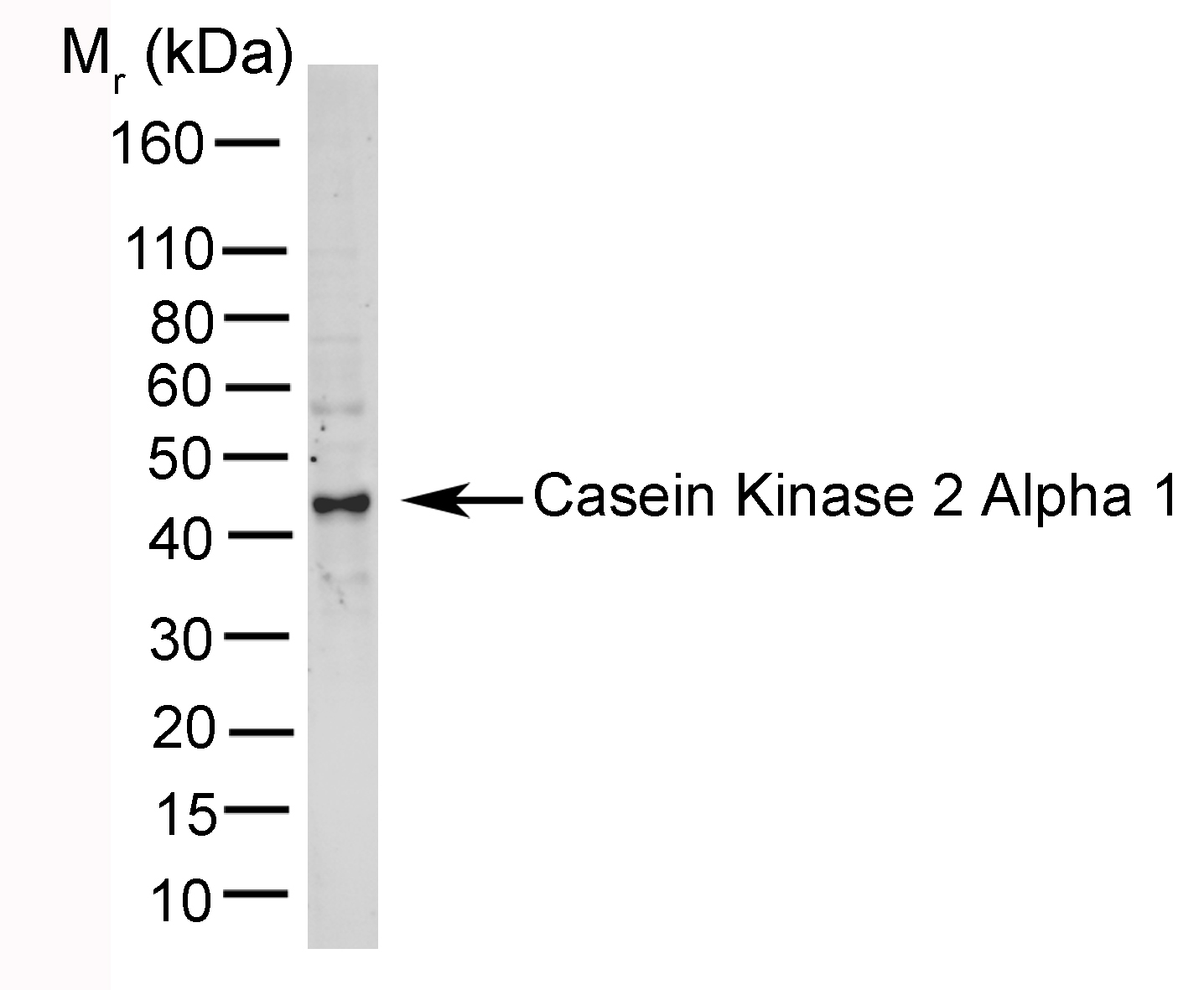 Casein Kinase 2 Antibody | AbD05928 thumbnail image 1