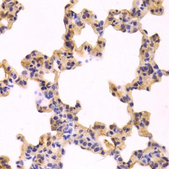 Caspase-3 Antibody gallery image 2