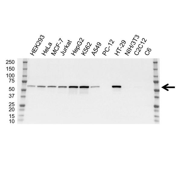 Catalase Antibody (PrecisionAb<sup>TM</sup> Antibody) | OTI1B6 gallery image 1