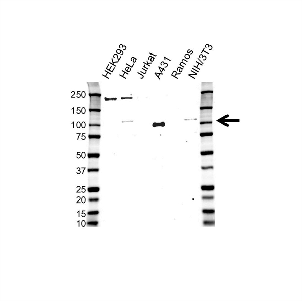 Catenin Delta 1 Antibody (PrecisionAb<sup>TM</sup> Antibody) gallery image 1