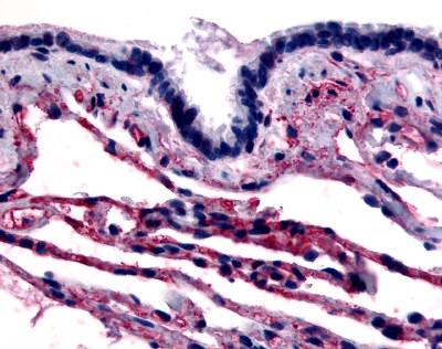 Caveolin 1 Antibody gallery image 1