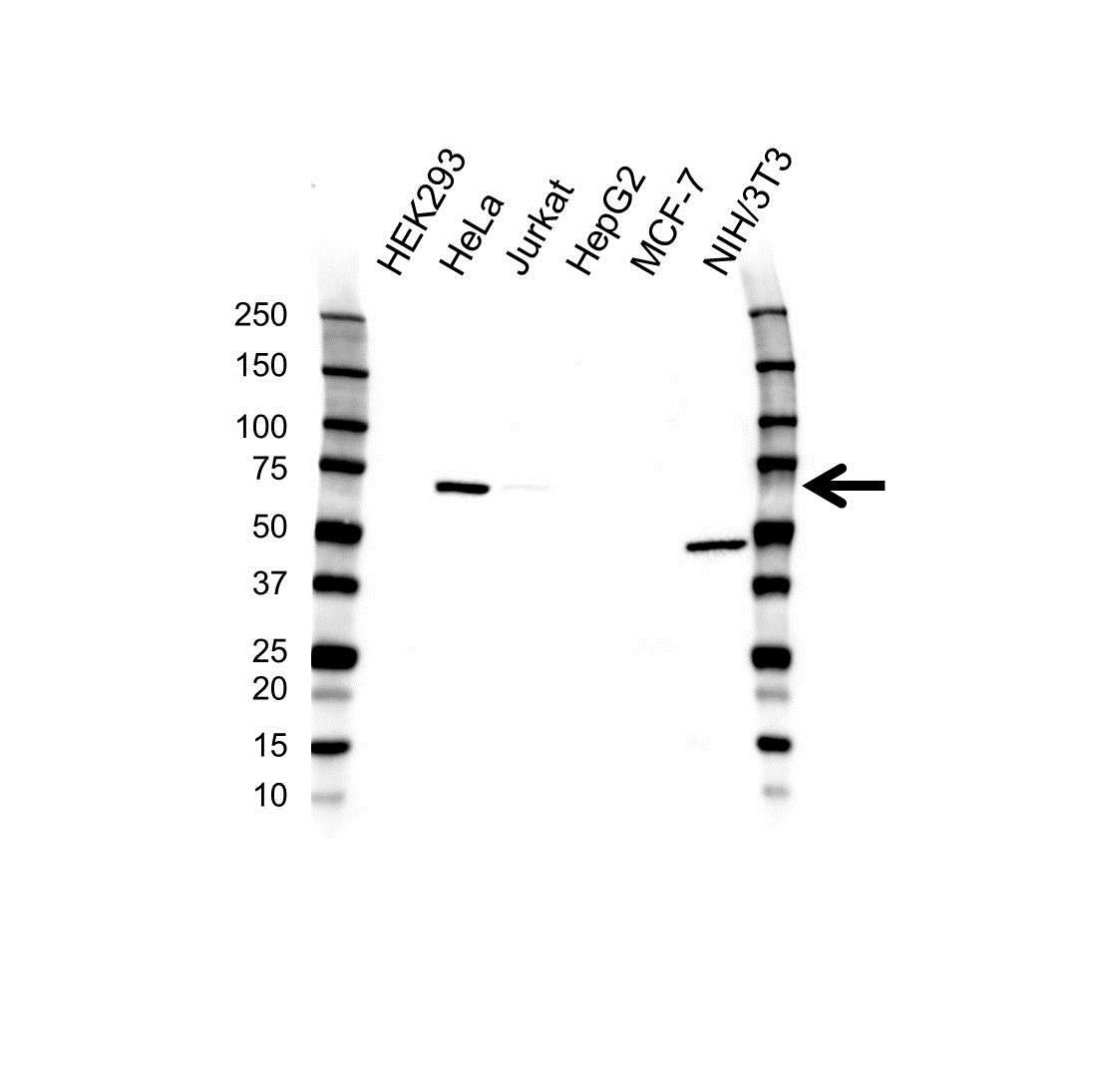 CBFA2T2 Antibody (PrecisionAb<sup>TM</sup> Antibody) gallery image 1