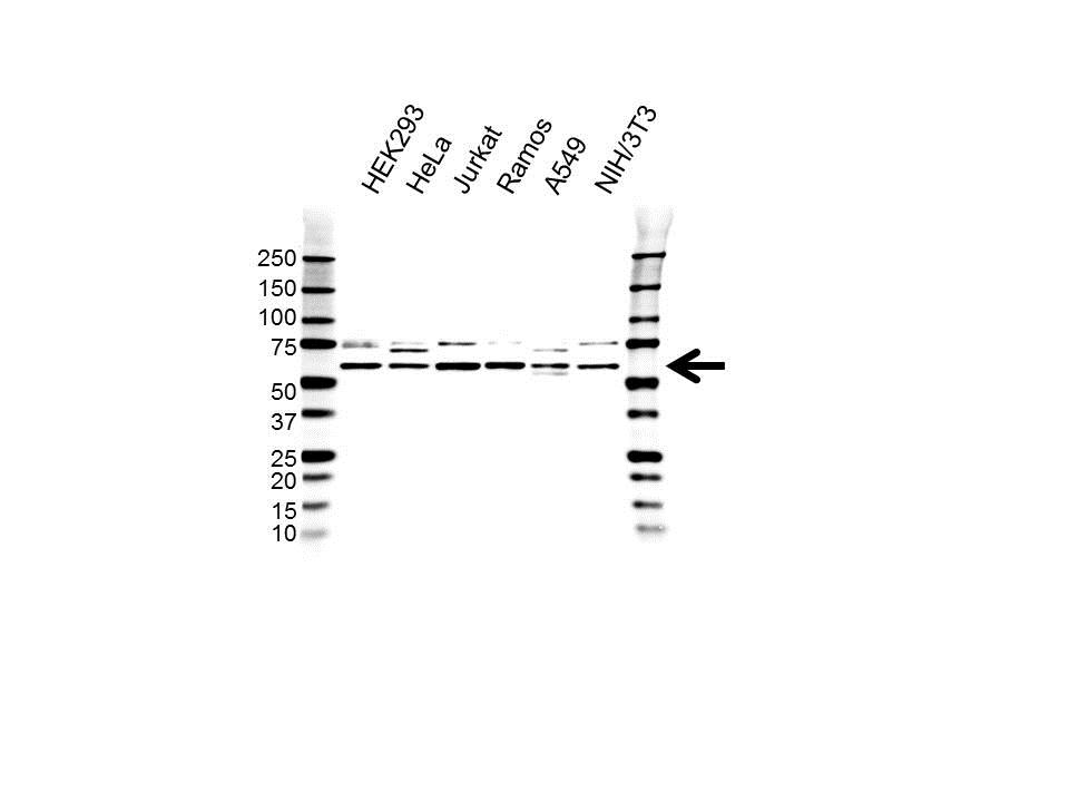 CCT Delta Antibody (PrecisionAb<sup>TM</sup> Antibody) gallery image 1