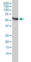 CCT Epsilon Antibody | 4E5-4B1 gallery image 3