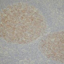 CD10 Antibody | 56C6 gallery image 1