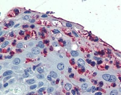 CD11c Antibody gallery image 1