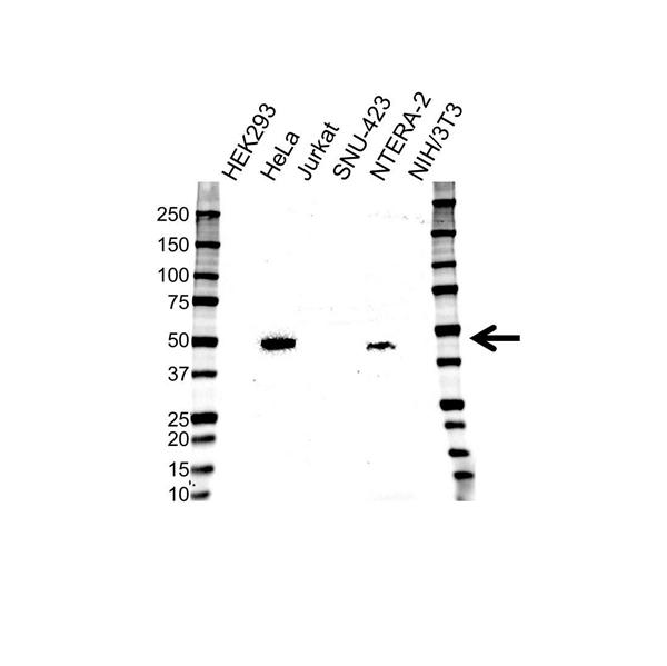 CD120b Antibody (PrecisionAb<sup>TM</sup> Antibody) gallery image 1