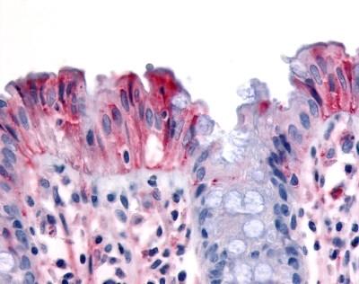 CD136 Antibody gallery image 1