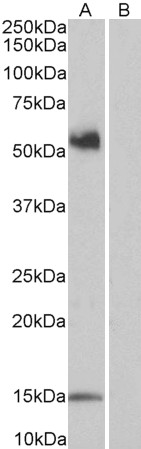 CD14 Antibody gallery image 1