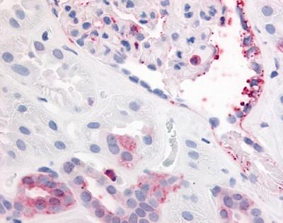 CD140b Antibody gallery image 1