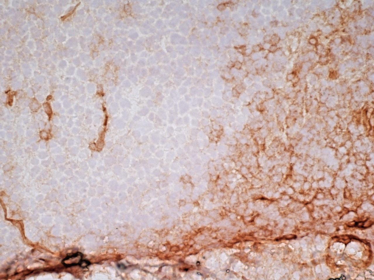 CD141 Antibody | QBEND/40 gallery image 6