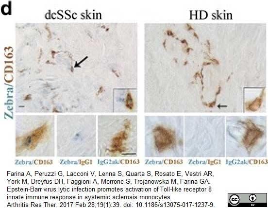 CD163 Antibody | EDHu-1 gallery image 23