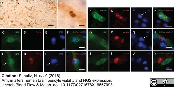 CD163 Antibody | EDHu-1 thumbnail image 7
