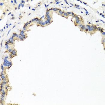 CD184 / CXCR4 Antibody gallery image 3