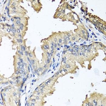 CD184 / CXCR4 Antibody gallery image 2