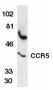 CD195 Antibody gallery image 2