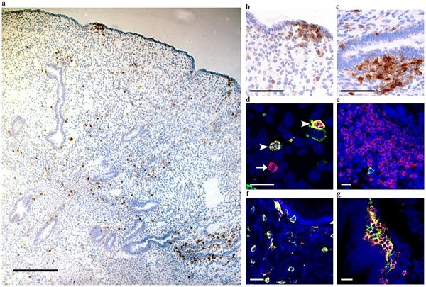 CD1a Antibody | NA1/34-HLK gallery image 5