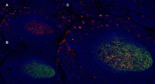CD1a Antibody | NA1/34-HLK gallery image 12