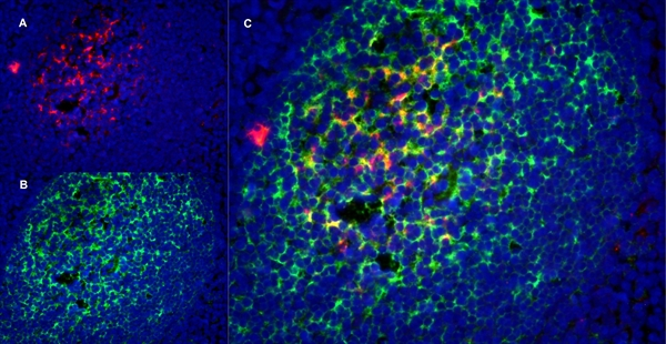 CD1a Antibody | NA1/34-HLK gallery image 14