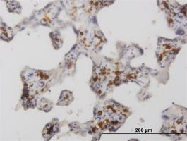 CD206 Antibody | 5C11 gallery image 1