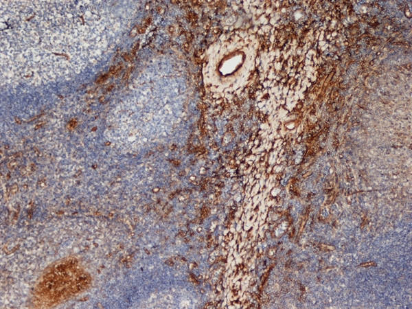 CD206 Antibody | 7-450 gallery image 1