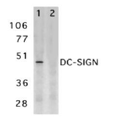 CD209 Antibody gallery image 1