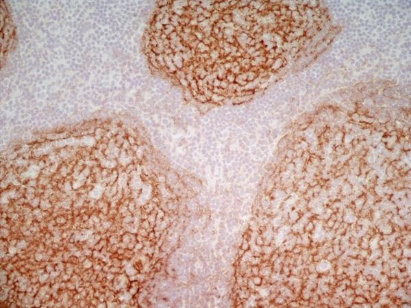 CD21 Antibody | LB21 gallery image 9