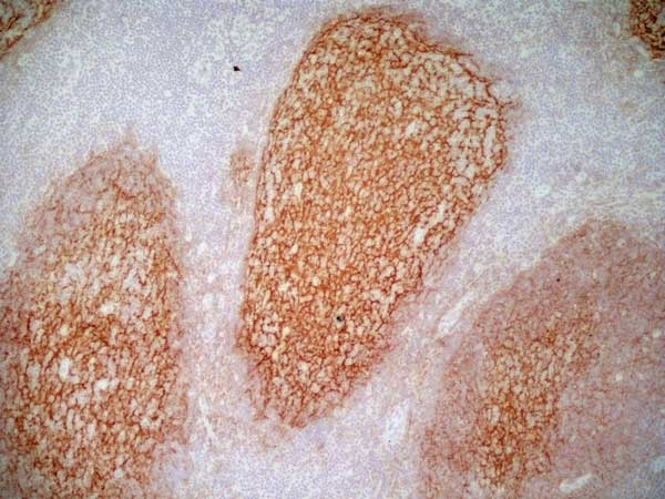 CD21 Antibody | LB21 gallery image 8