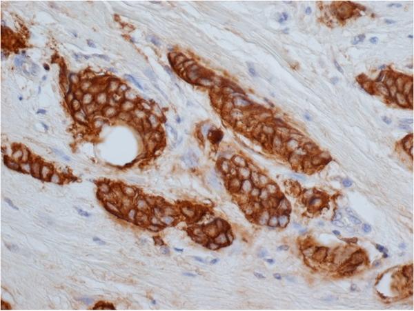 CD227 Antibody   149.1G8 gallery image 1