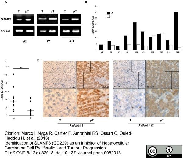 CD229 Antibody | HLy9.1.25 gallery image 6