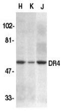 CD261 Antibody gallery image 1